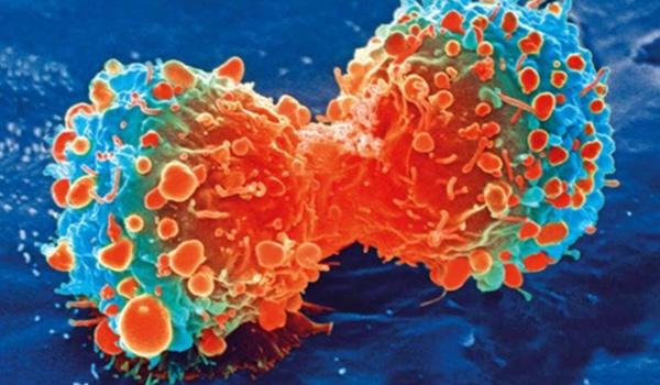 New method to detect early-stage cancer identified