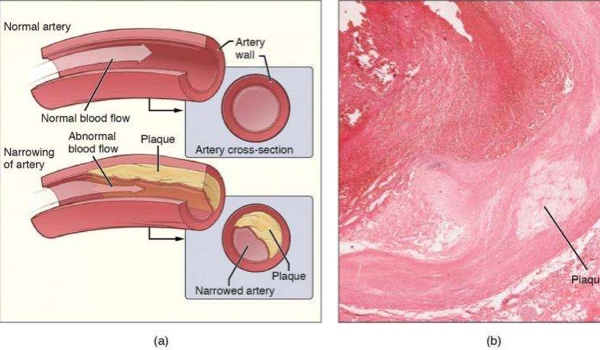 Protein regulating inflammation in atherosclerosis identified